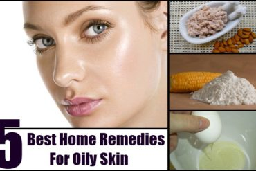 Home Remedies For Oily Skin 370x247 - Engage In 5 Home Remedies For Oily Skin: