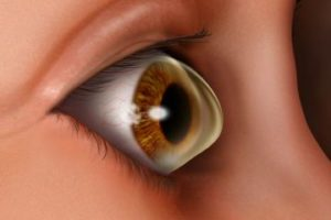 keratoconus 300x200 - What Is Keratoconus? Understanding This Progressive Eye Disease